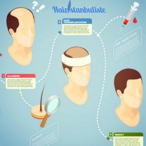 عملية زرع الشعر في تركيا