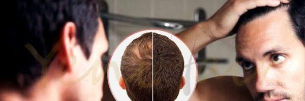 أسباب تساقط الشعر لدى الرجال